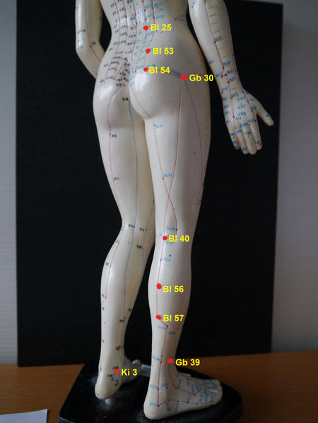 Acupuncture and Moxibustion for Restless Legs Syndrome RLS